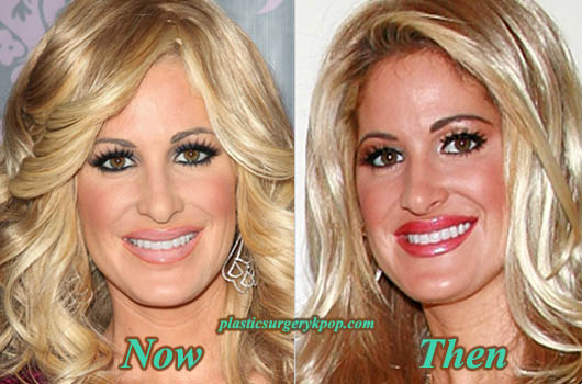 KimZolciakPlasticSurgery Kim Zolciak Plastic Surgery Before and After Pictures