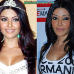 Koena Mitra Plastic Surgery Before and After Pictures