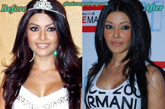 Koena Mitra Before And AfterNew Celebrity