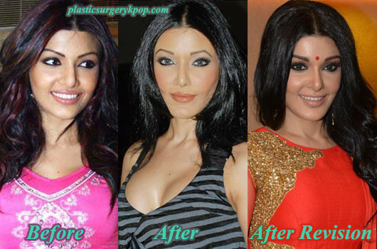 Koena Mitra Plastic Surgery Before and After Nose Job