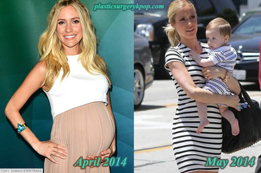 KristinCavallariPlasticSurgery Kristin Cavallari Plastic Surgery Before and After Pictures