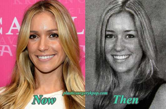 KristinCavallariPlasticSurgeryPicture Kristin Cavallari Plastic Surgery Before and After Pictures