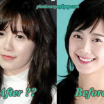 Ku Hye Sun Plastic Surgery Rumor Before and After Pictures