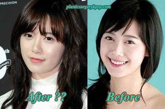 KuHyeSunPlasticSurgery Ku Hye Sun Plastic Surgery Rumor Before and After Pictures