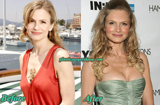 KyraSedgwickBreastAugmentation Kyra Sedgwick Plastic Surgery Before After