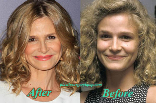 KyraSedgwickPlasticSurgery Kyra Sedgwick Plastic Surgery Before After