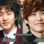 Kyuhyun Plastic Surgery Nose Job and Eyelid Surgery Before After