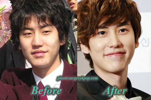 KyuhyunPlasticSurgery Kyuhyun Plastic Surgery Nose Job and Eyelid Surgery Before After