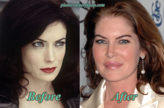 LaraFlynnBoyleLipsAugmentation Lara Flynn Boyle Plastic Surgery Before and After Pictures
