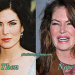 Lara Flynn Boyle Plastic Surgery Before and After Pictures