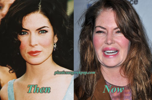 LaraFlynnBoylePlasticSurgery Lara Flynn Boyle Plastic Surgery Before and After Pictures