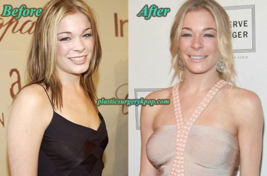LeAnnRimesBoobsJob LeAnn Rimes Plastic Surgery Boobs Job Before and After Pictures