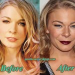 LeAnn Rimes Plastic Surgery Boobs Job Before and After Pictures