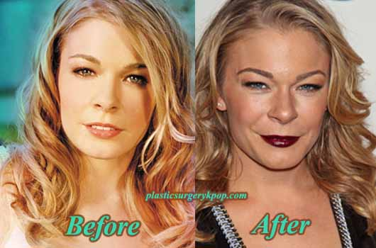 LeAnnRimesPlasticSurgery LeAnn Rimes Plastic Surgery Boobs Job Before and After Pictures