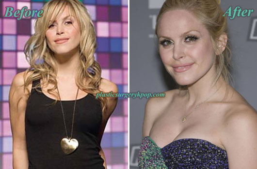 LeahMillerBoobsJob Leah Miller Plastic Surgery Before and After Pictures