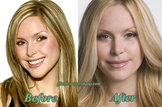 LeahMillerPlasticSurgery Leah Miller Plastic Surgery Before and After Pictures