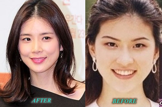 LeeBoYoungPlasticSurgery Lee Bo Young Plastic Surgery Nose Job Before and After