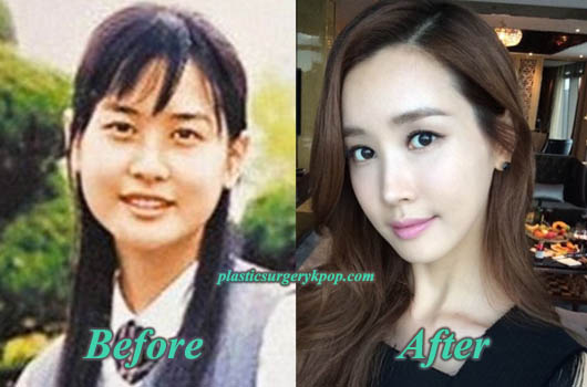 LeeDaHaeJawReduction Lee Da Hae Plastic Surgery Before and After