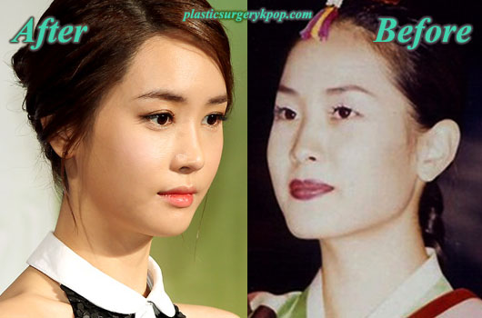 LeeDaHaePlasticSurgery Lee Da Hae Plastic Surgery Before and After
