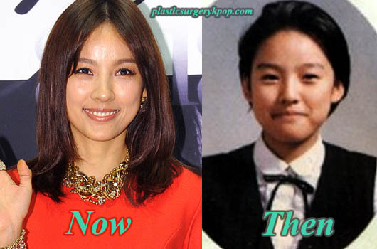 LeeHyoriPlasticSurgery Lee Hyori Plastic Surgery Before and After