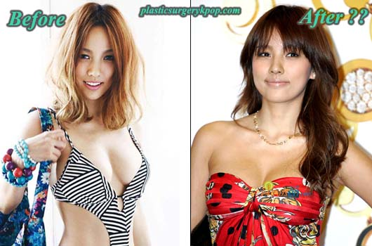 LeeHyoriPlasticSurgeryBeforeAfter Lee Hyori Plastic Surgery Before and After