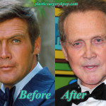 Lee Majors Plastic Surgery Before After Pictures