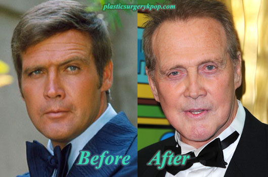LeeMajorsPlasticSurgery Lee Majors Plastic Surgery Before After Pictures