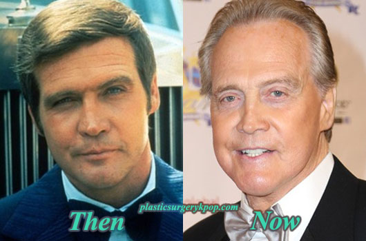 LeeMajorsPlasticSurgeryPicture Lee Majors Plastic Surgery Before After Pictures
