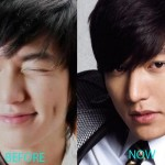 Lee Min Ho Plastic Surgery Before and After Nose Job