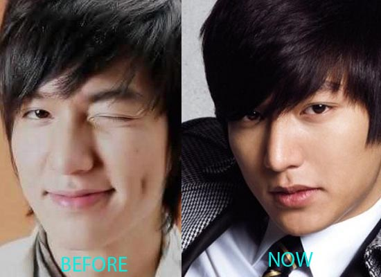 LeeMinHoPlasticSurgery Lee Min Ho Plastic Surgery Before and After Nose Job
