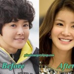 Lee Si Young Plastic Surgery Admission Before After Pictures