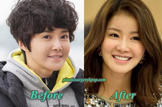 LeeSiYoungPlasticSurgery Lee Si Young Plastic Surgery Admission Before After Pictures