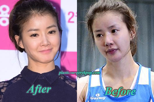LeeSiYoungPlasticSurgeryPicture Lee Si Young Plastic Surgery Admission Before After Pictures