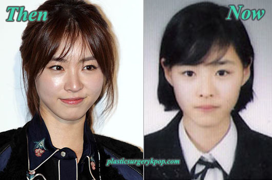 LeeYeonHeeBeforeandAfter Lee Yeon Hee Plastic Surgery Before and After Pictures