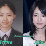 Lee Yeon Hee Plastic Surgery Before and After Pictures