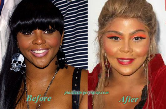 LilKimPlasticSurgery Lil Kim Plastic Surgery Before and After Pictures