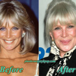 Linda Evans Plastic Surgery Before After Pictures