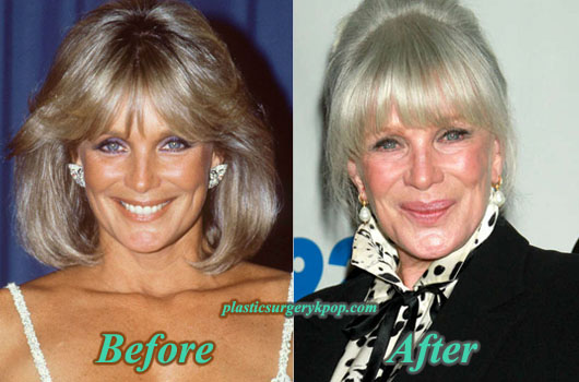 LindaEvansPlasticSurgery Linda Evans Plastic Surgery Before After Pictures