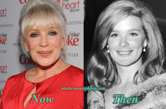 LindaEvansPlasticSurgeryPicture Linda Evans Plastic Surgery Before After Pictures