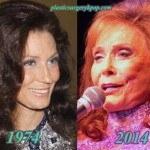 Loretta Lynn Plastic Surgery Before and After Pictures