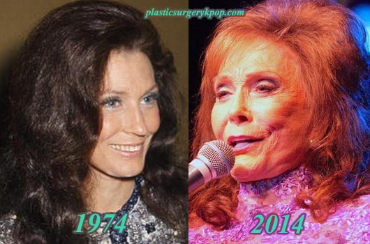 LorettaLynnPlasticSurgery Loretta Lynn Plastic Surgery Before and After Pictures