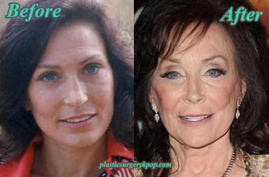 LorettaLynnPlasticSurgeryPicture Loretta Lynn Plastic Surgery Before and After Pictures