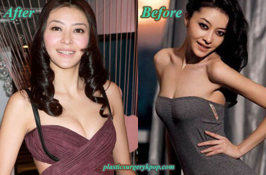 LynnHungPlasticSurgery Lynn Hung Plastic Surgery Before and After Pictures