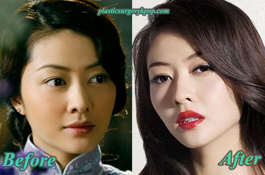 LynnHungPlasticSurgeryPicture Lynn Hung Plastic Surgery Before and After Pictures