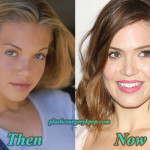 Mandy Moore Plastic Surgery Before and After Pictures