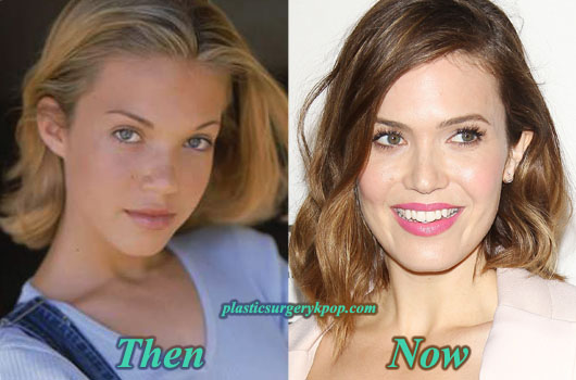 MandyMoorePlasticSurgery Mandy Moore Plastic Surgery Before and After Pictures