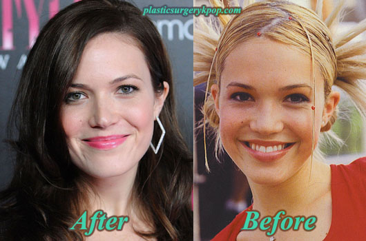 MandyMoorePlasticSurgeryPicture Mandy Moore Plastic Surgery Before and After Pictures