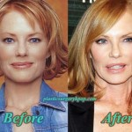 Marg Helgenberger Plastic Surgery Before and After Photos
