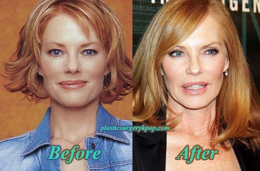 MargHelgenbergerPlasticSurgery Marg Helgenberger Plastic Surgery Before and After Photos