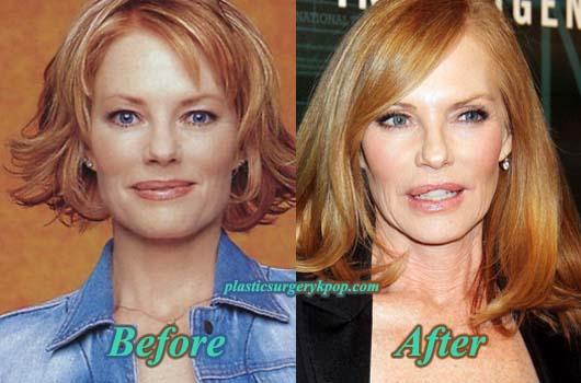 MargHelgenbergerPlasticSurgery Marg Helgenberger Plastic Surgery Before and After Photos